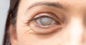 Operacija sive mrene oka