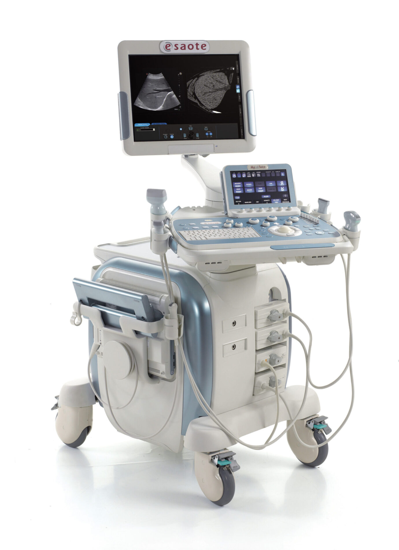 Ultrazvuk trbuha