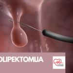 Polipektomija polipa Sarajevo